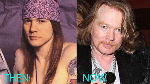 Axl Rose Plastic Surgery Before And After Lovely Surgery