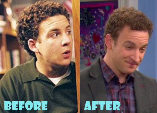 ben savage nose job - 500×360