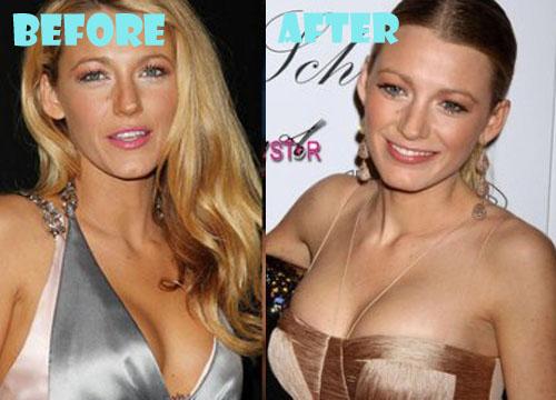 Augmentation breast plastic reconstructive surgery