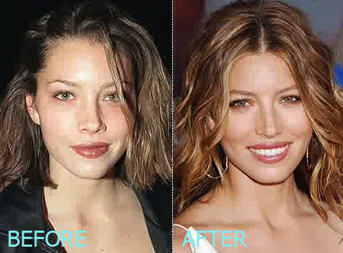 Jessica Biel Plastic Surgery Before And After Lovely