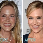 julie benz plastic surgery before and after. Cars Review. Best American Auto & Cars Review