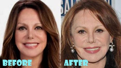 Celebrity facelift photos