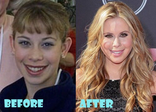 Tara Lipinski Plastic Surgery Before And After Lovely