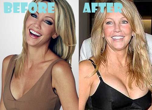Heather Locklear Plastic Surgery Breast Implant