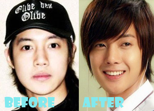 kim hyun joong plastic surgery before and nose job
