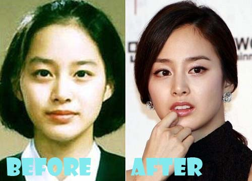 Kim Tae Hee Plastic Surgery Before and After Eyelid ...