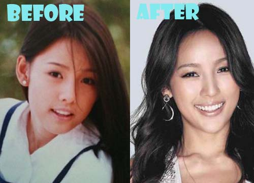 Lee Hyori Plastic Surgery Before And After Photos Lovely