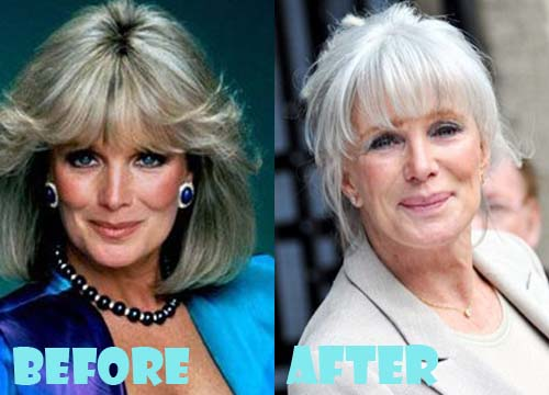 Botched celebrity botox pics