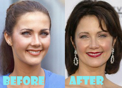 pictures US addicted to plastic surgery