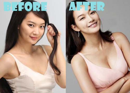Shin Min Ah Plastic Surgery Before And After Photos