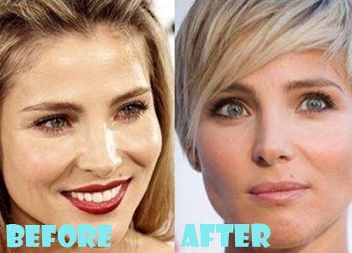 Elsa Pataky Plastic Surgery Before And After Nose Job