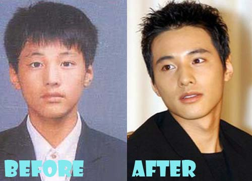 Won Bin Plastic Surgery Before and After Eyelid Surgery ...