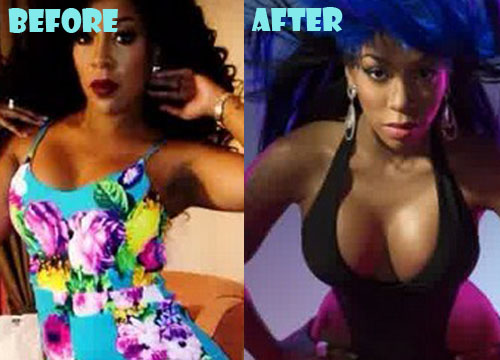 K Michelle Before And After K Michelle Plas...