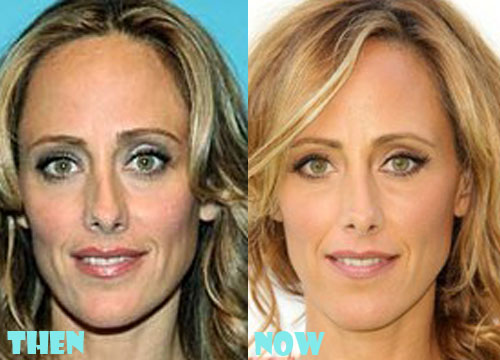 Kim Raver Plastic Surgery Before And After Photos Lovely
