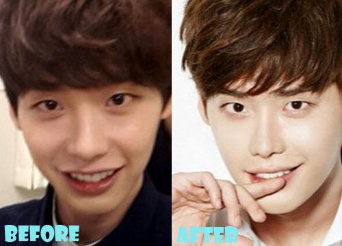 lee jong suk plastic surgery before after nose job