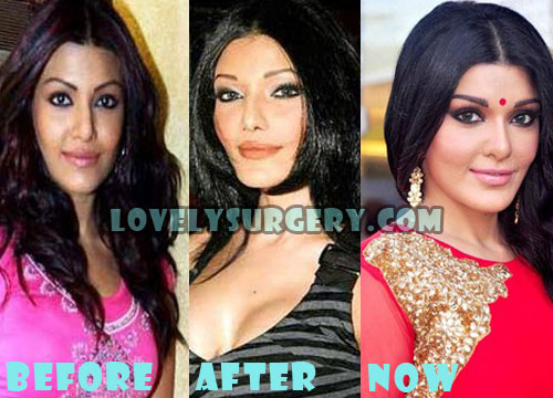 Koena Mitra Before and After Plastic Surgery Photos | Celebrity ...