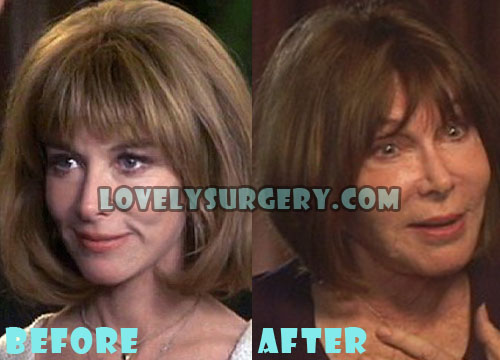 Lee Grant Plastic Surgery Gone Wrong Before And After