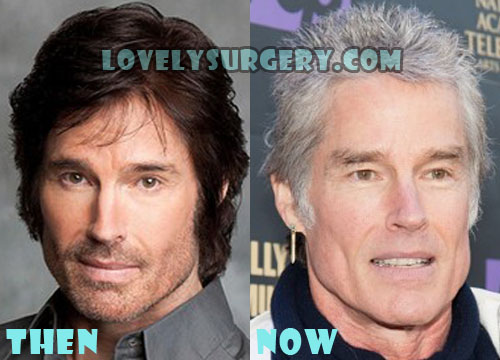 Ronn Moss Plastic Surgery Before And After Pictures
