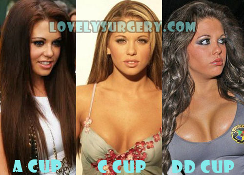 Bianca Gascoigne Plastic Surgery Before And After Photo