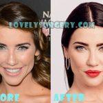 Jacqueline MacInnes Wood Plastic Surgery Lip Job