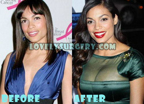 Rosario Dawson Plastic Surgery Before And After Boob Job