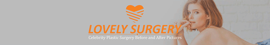 Lovely Surgery | Celebrity Before and After Picture header image