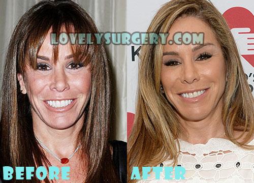 Melissa Rivers Plastic Surgery
