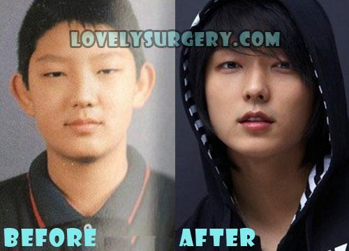 Lee Joon Gi Plastic Surgery Rhinoplasty