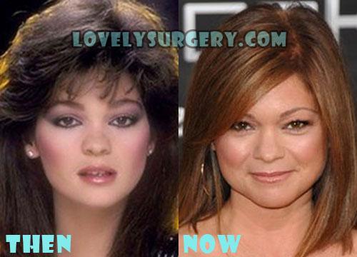 Valerie Bertinelli Plastic Surgery Botox