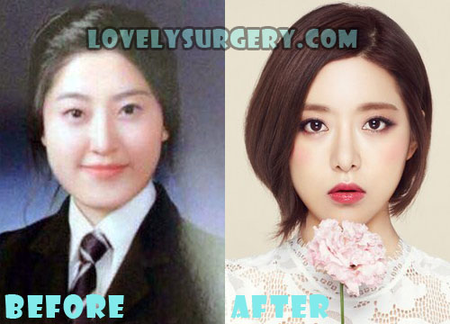 Dj Soda Plastic Surgery Before And After Rumor Lovely