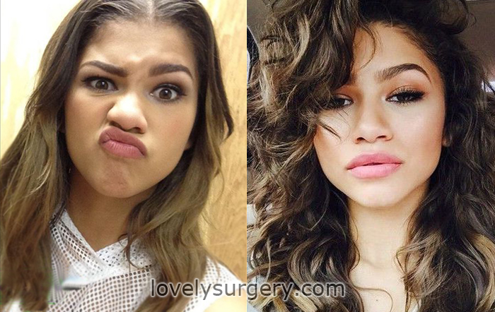 zendaya after plastic surgery