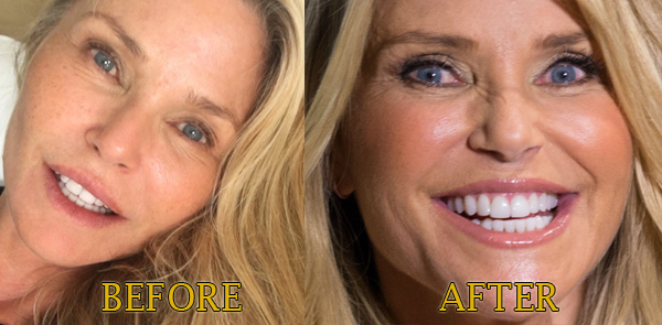 christie brinkley botox fillers