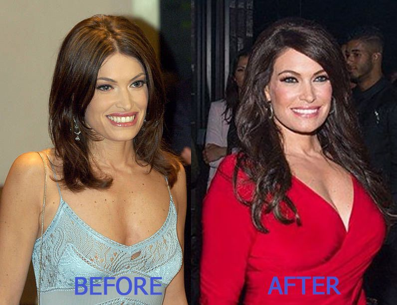 Kimberly Guilfoyle Breast Enhancement Before After